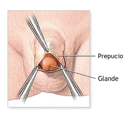 pene erecto sin circuncicion