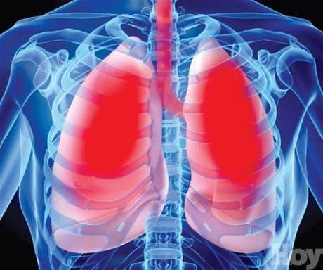 Cáncer de pulmón ¡gánale la batalla!