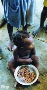 Llamó enfrentar la malnutrición