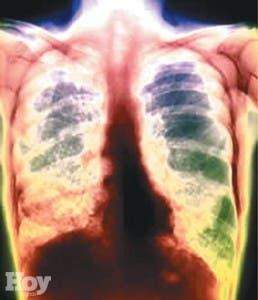 El miedo al rechazo extiende la tuberculosis en la India