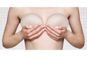 Expertos dicen no es necesario quitar a mujeres implantes mamarios en buen estado