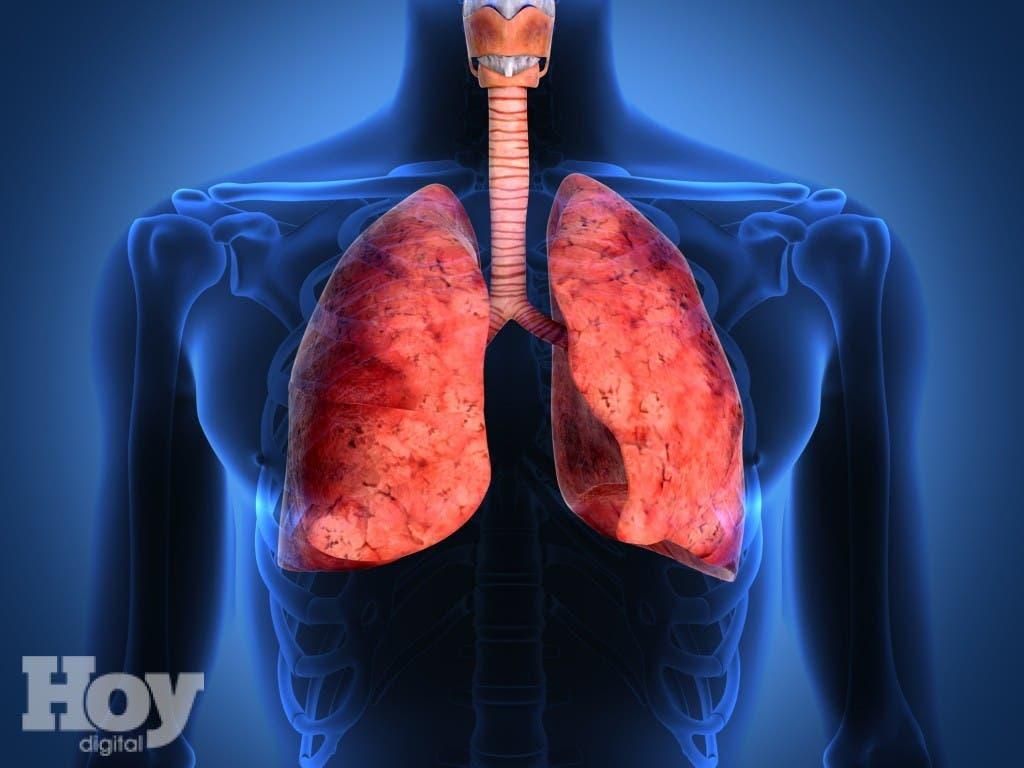 """El estudio, publicado por la revista """"New England Journal of Medicine"""", demuestra por primera vez que el desarrollo pulmonar anormal antes de la edad adulta es, junto con el tabaquismo, un factor de riesgo para padecer EPOC.  Archivo."""