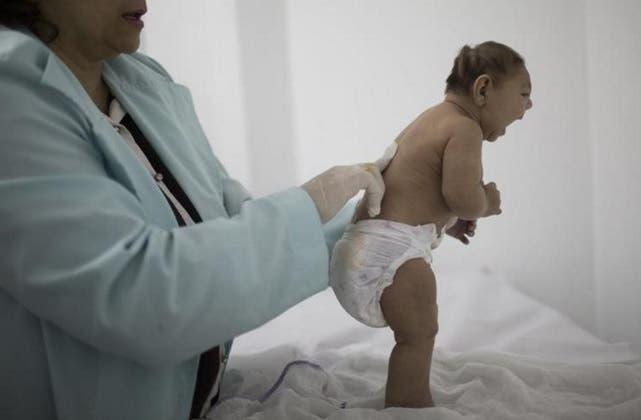 ¿Pueden los científicos vincular el zika y la microcefalia?
