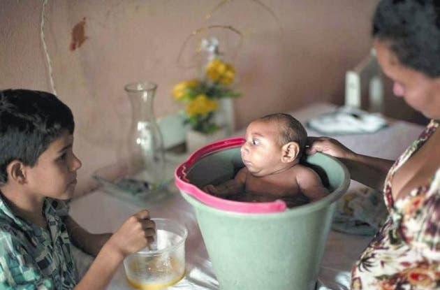 Científicos de EEUU confirman vínculo entre zika y microcefalia en fetos