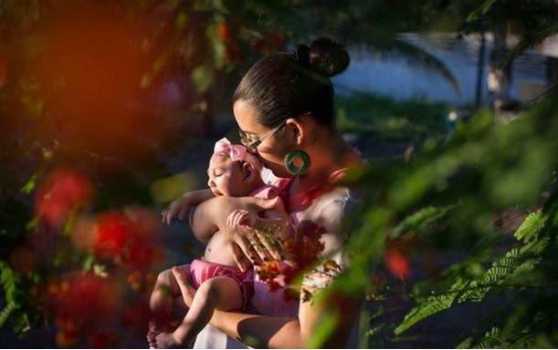 Brasil confirma 55 nuevos casos de microcefalia vinculados al virus Zika