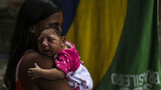 Casos de microcefalia asociados al zika causan alarma en Centroamérica