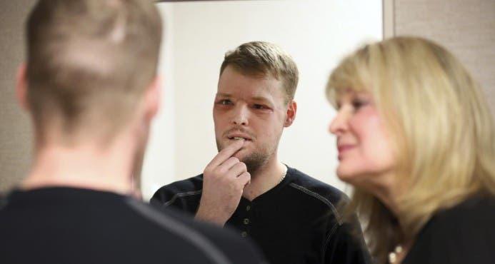 El antes y después del hombre que recibió un nuevo rostro tras intento de suicidio