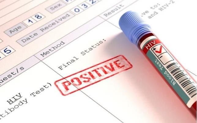 VIH positive