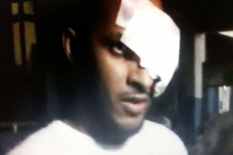 Le «sacan» ojo a preso durante motín en cárcel de La Romana