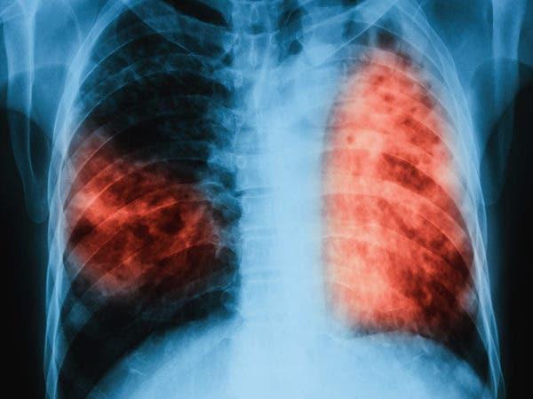 La bacteria de la tuberculosis (Mycobacterium tuberculosis), que afecta sobre todo a los pulmones. Fuente externa.