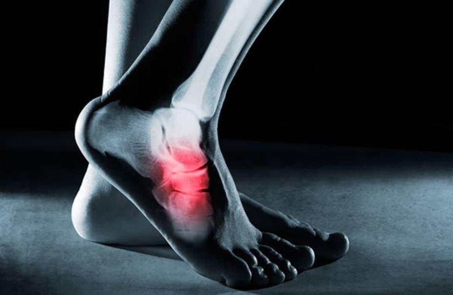 Descubren el proceso que activa la reparación de microfracturas en los huesos