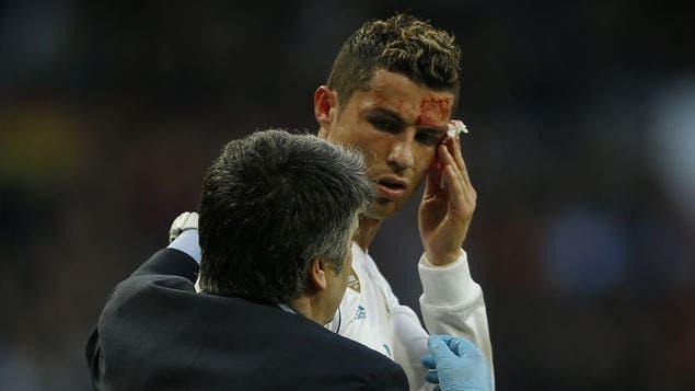 Real Madrid: Corte de Cristiano Ronaldo pudo ser mucho peor