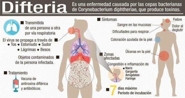 difteria-640x341