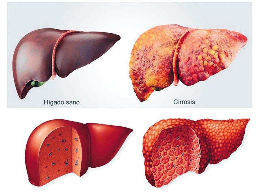 La inulina disminuye complicaciones por la cirrosis hepática