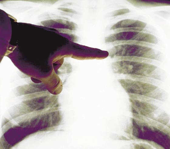 Cáncer pulmón afecta hombre