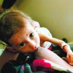 YESENIA3: Economia.Tres meses después de ingresar en el Hospital Benjamín Bloom, en San Salvador, Vittian Yesenia, un bebé de diez meses volverá a su casa. Una cardiopatía congénita,  le impedía un desarrollo normal y el bebé padecía una desnutrición severa. Fué intervenida quirúrgicamente, la operación fue un éxito y dos días después, volvió al departamento de San Vicente.ACAN-EFE/EL DIARIO DE HOY/Jenny Cruz[ES-3]