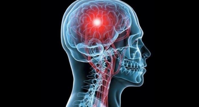 Desarrollan un estimulador eléctrico cerebral que puede ayudar a epilépticos