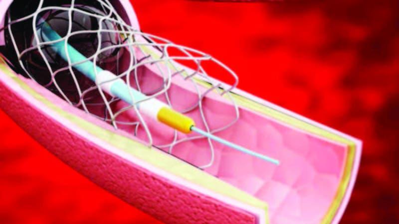 Alarma en RD alta cifra implantes dispositivos cardíacos; ven negocio