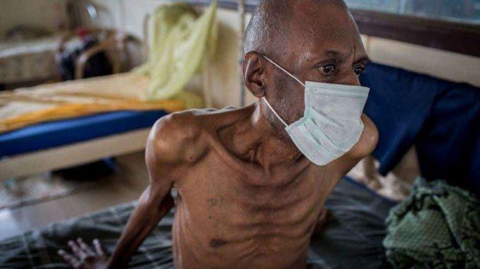 MSF dice haber encontrado mejor tratamiento para tuberculosis resistente