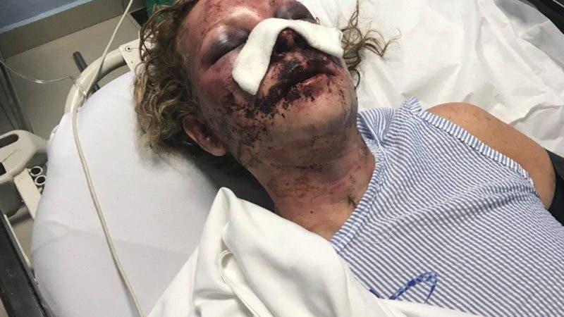 Video: Cestur revela cómo van las indagaciones sobre ataque a turista EEUU en hotel Punta Cana