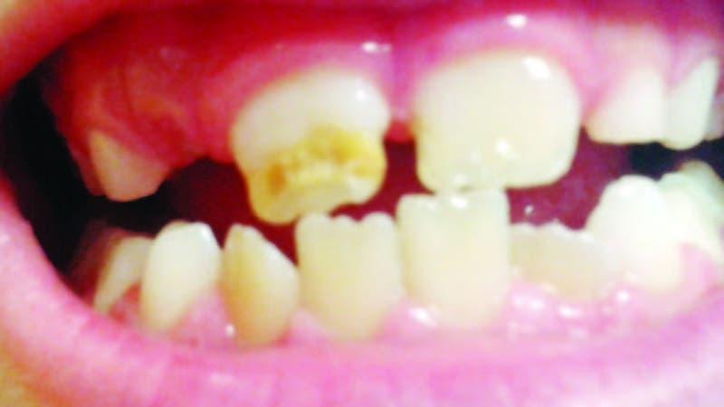 """Los niños que tienen estas afecciones en los dientes sufren generalmente """"b u l lying"""" de sus compañeros"""