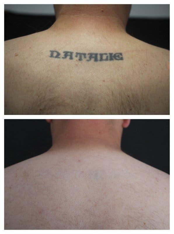 ¿Llevas tatuado el nombre de un antiguo amor? ¿Te arrepientes? aquí algunos consejos para eliminarlo