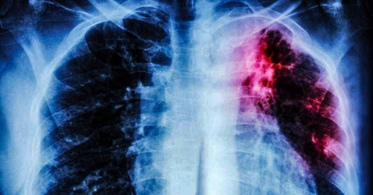 ¿Se puede transmitir la tuberculosis en estado de latencia?