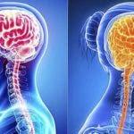 cerebro-