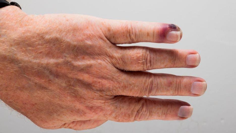 La septicemia es causada cuando el sistema inmune entra en colapso y, en lugar de combatir una infección, también comienza a atacar otras partes del cuerpo.