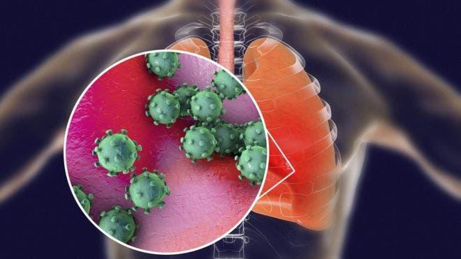 Canadá eleva a 11 el número de personas infectadas con el nuevo coronavirus