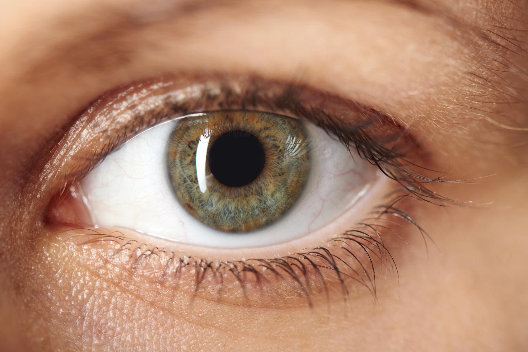El glaucoma es la primera causa de la ceguera irreversible