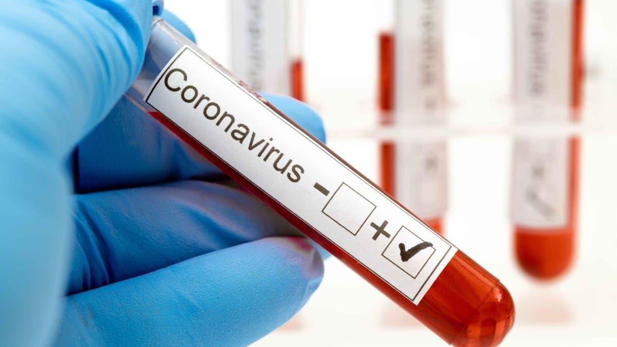 Coronavirus RD:  526 casos nuevos, el récord más alto