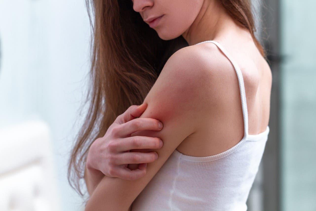 La Dermatitis Atópica desafía a pacientes, profesionales de la salud y políticos
