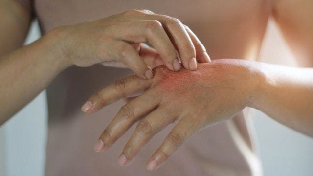 Día Mundial de la Psoriasis: enfermedad que afecta física y emocionalmente