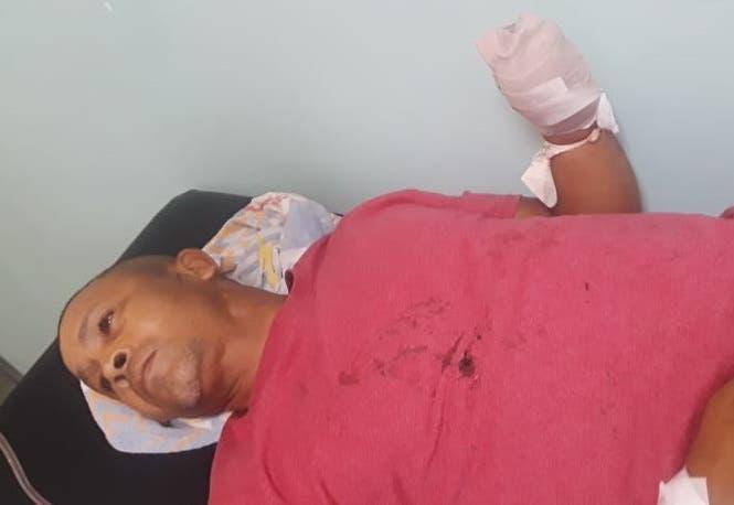 Cortan mano izquierda a concejal durante una riña a machetazos en Dajabón