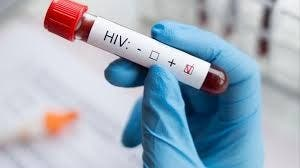 ONU pronostica hasta 148,000 muertes adicionales por sida hasta 2022