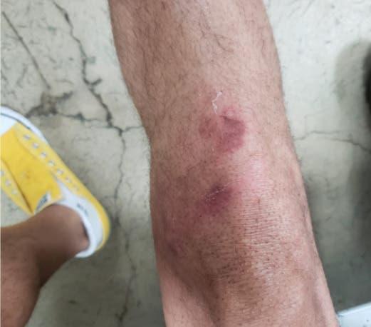 CMD denuncia militares golpearon cardiólogo como un animal durante toque de queda
