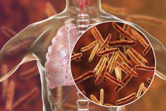 Estudian cómo mejorar el tratamiento de tuberculosis con antiinflamatorios