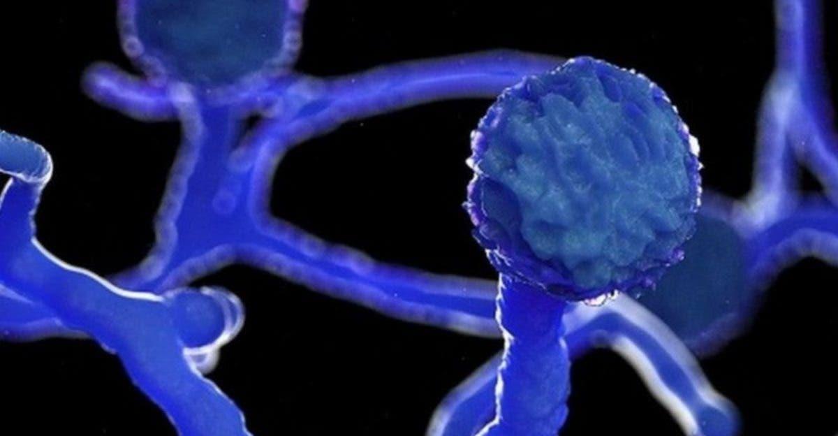 """""""Hongo negro"""":  enemigo de pacientes de covid-19"""