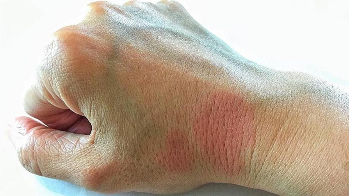 Día Mundial del Lupus: Alertan sobre síntomas de la enfermedad