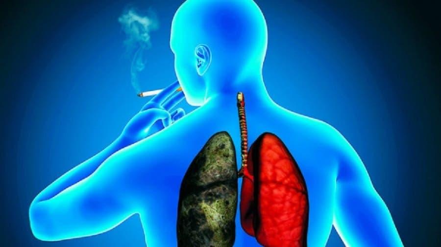 El cáncer de pulmón es la primera causa de muerte por esta enfermedad a nivel mundial