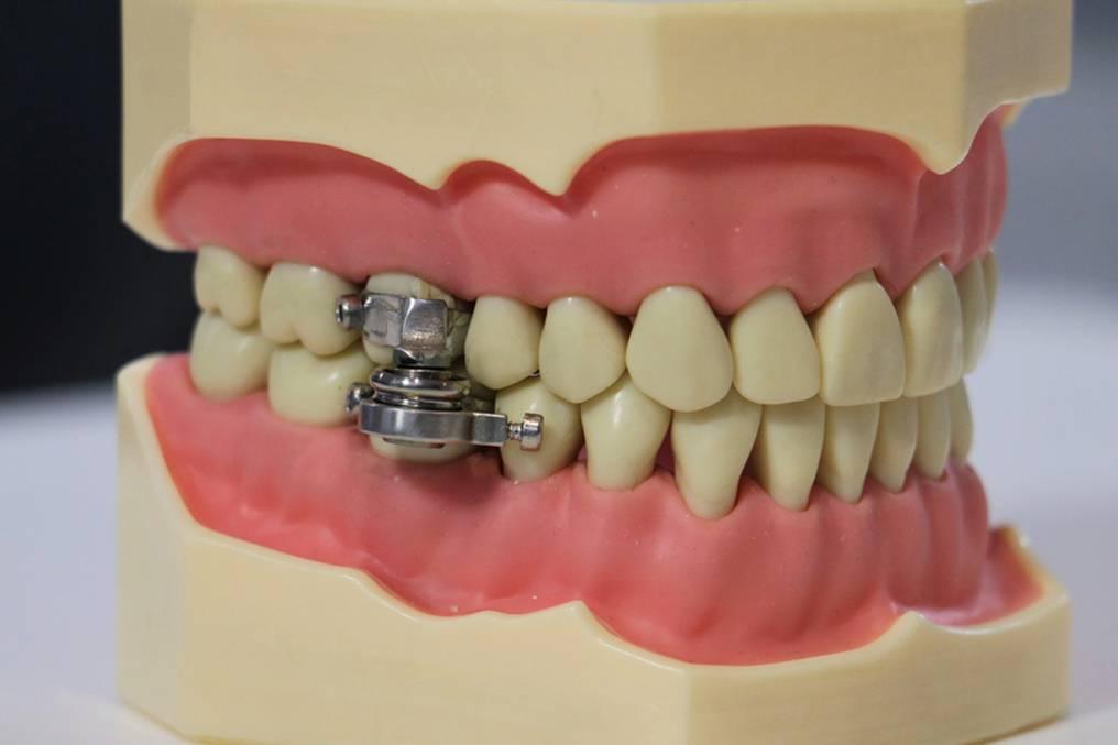 Presentan «candado en los dientes» que permite adelgazar