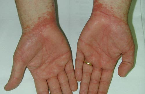 Dermatitis alérgica, lo que grita nuestra piel