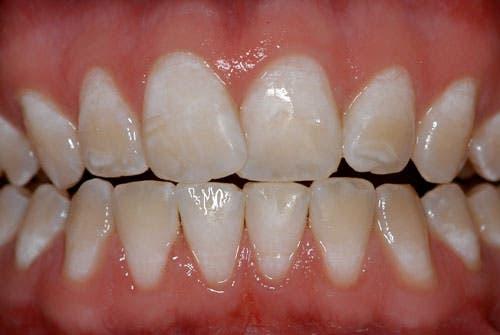 ¿Manchas en los dientes? Conozca qué la causa y sus efectos en la salud