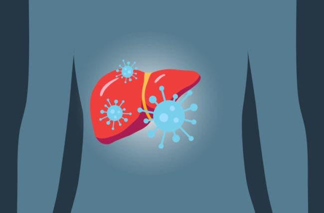 Día Mundial contra la Hepatitis: Lo que debes saber