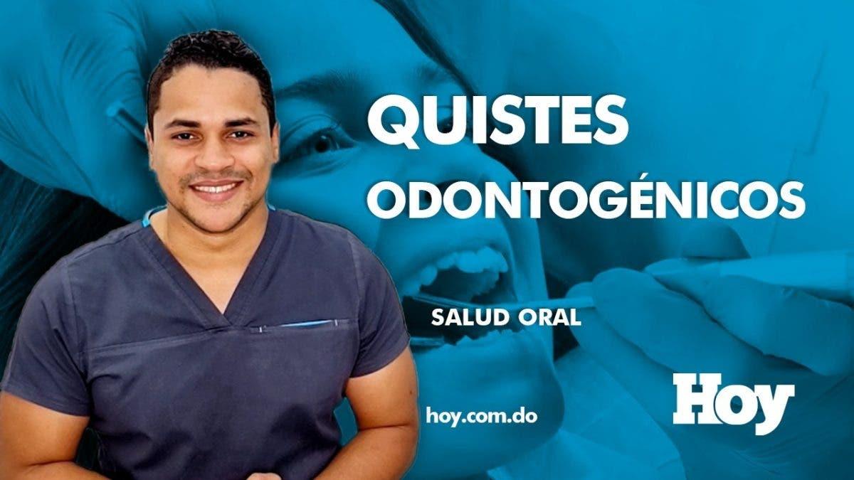 #SaludOralHoy Quistes dentales: ¿qué son y cómo se producen?