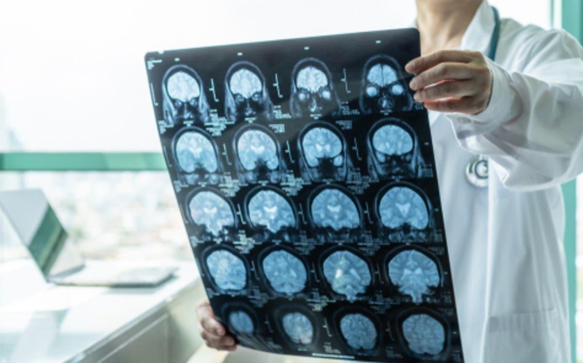 Identifican el gen responsable de una nueva enfermedad neurológica