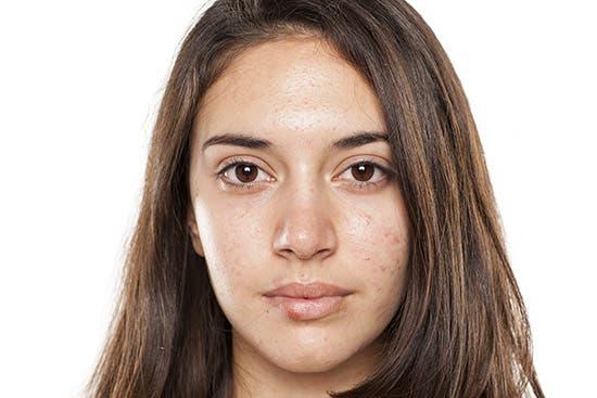 El acné es síntoma del hipoandrogenismo. Fuente externa