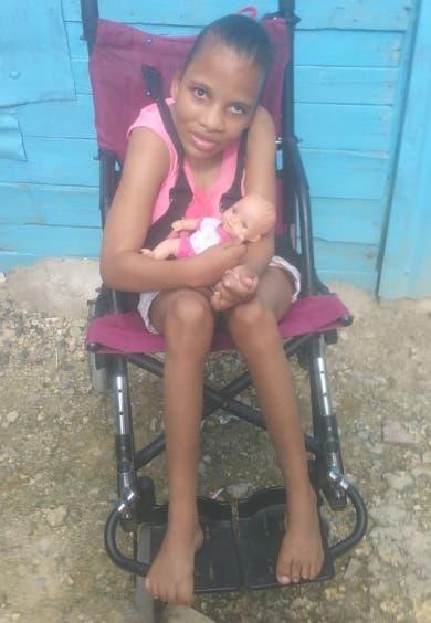 Solidaridad; Joven con discapacidad requiere asistencia