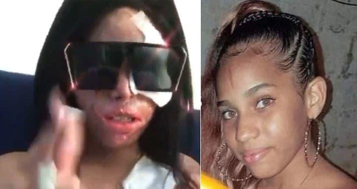 Tribunal dará fallo hoy en caso Yocairi Amarante, la joven rociada con ácido del diablo